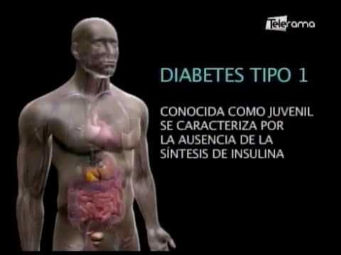 Gino Molinari nos cuenta sus testimonio al padecer diabetes