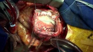 【心臓手術】左室瘤及び心室中隔欠損症に対する左室形成術(David-Komeda法)