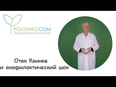 Отек Квинке - Симптомы и Неотложная помощь при отеке
