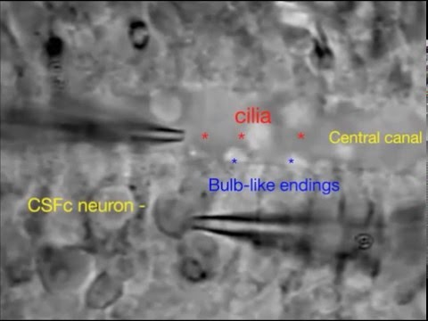 Ciliated neurons lining the central canal sense both fluid movement and pH through ASIC3