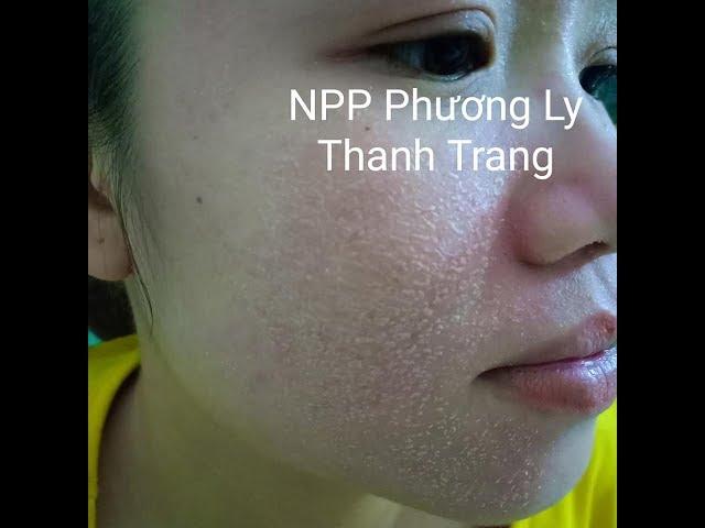 Giai Đoạn Bong Da Quá Trình Tái Tạo Da Thanh Trang 0972034930