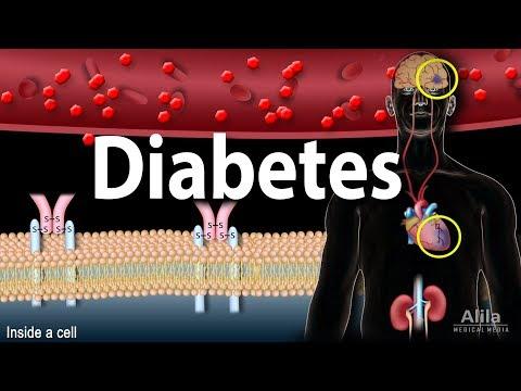 diabetes-mellitus---symptoms,-complication,-pathology-of-type-1-and-type-2,-animation