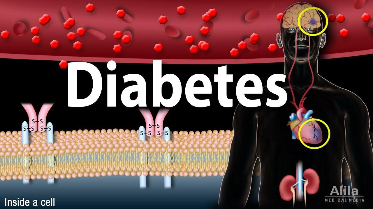 Diabetes Mellitus Symptoms Complication Pathology Of Type 1