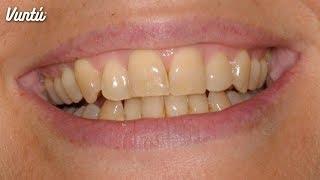 5 alimentos que hacen amarillos a tus dientes