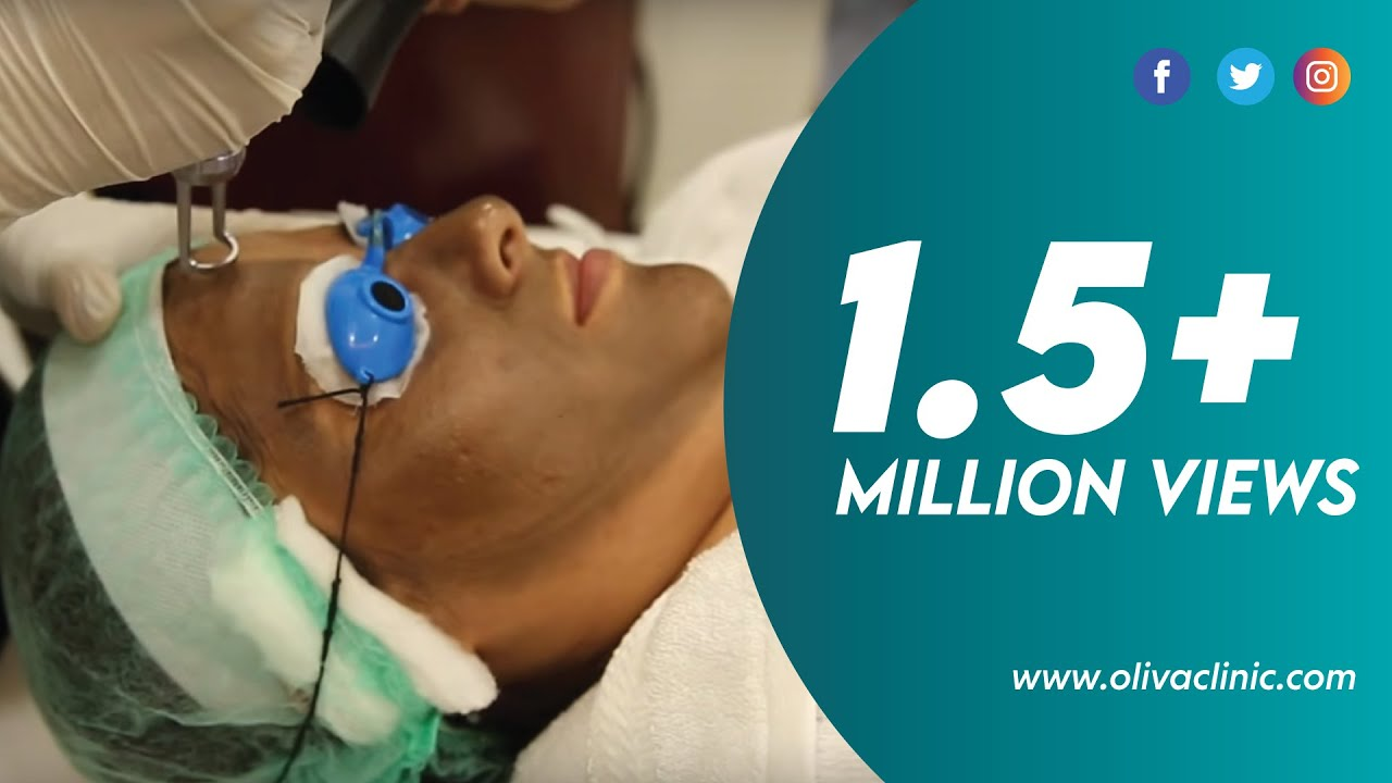 Laser Skin Lightening Whitening Treatment For Fair And Radiant