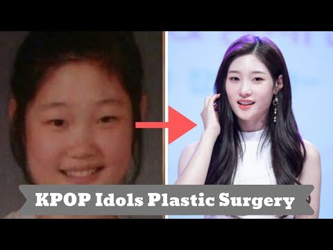 7-kpop-idols-with-their-plastic-surgery-story