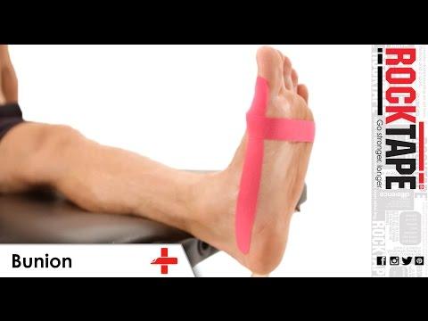 RockTape - Kinesiology Tape Instruction - Bunion
