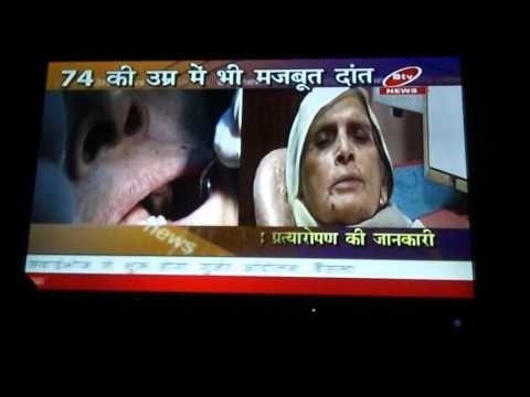 dr.rajiv full mouth dental implant news jaipur.mp4