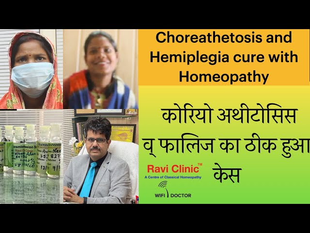Choreoathetosis and Hemiplegia Case Treated by Homeopathy Dr Ravi Singh