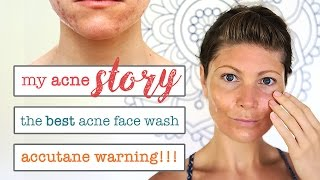 MY ACNE STORY // HOMEMADE ACNE FACE WASH // DON