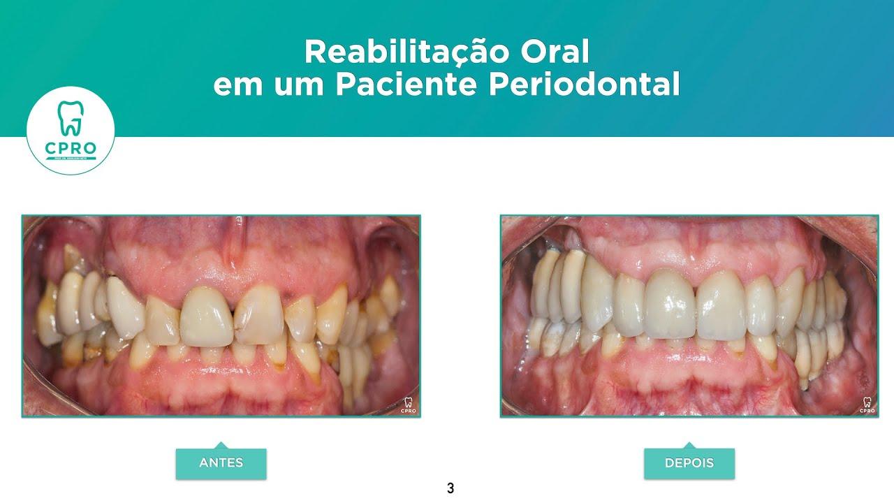Reabilitação Oral em um Paciente Periodontal