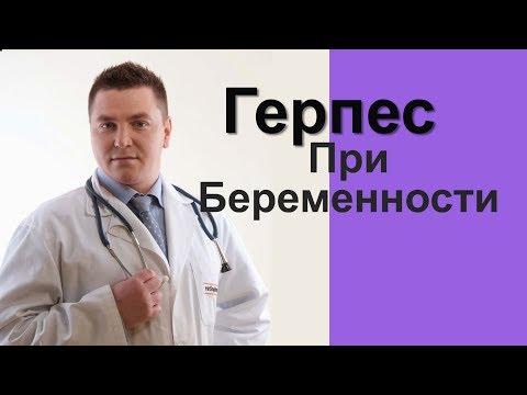 Герпес При Беременности Herpes For Pregnancy