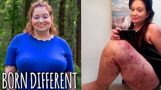I've Had 50 Surgeries On My Giant Leg | BORN DIFFERENT