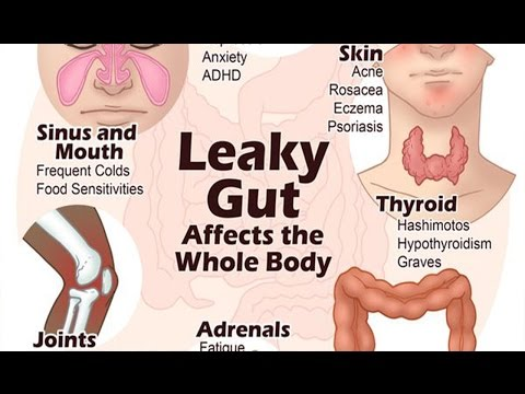 6 Steps to Heal Leaky Gut and Autoimmune Disease Naturally | Health Vlogger