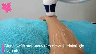 Diode (Ütüleme) Lazer Epilasyon