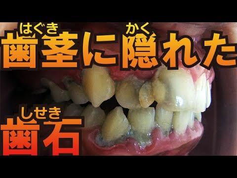 歯茎 の 中 の 歯石 取り