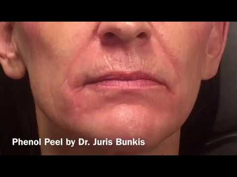 Phenol Peel -Skin Resurfacing - Dr. Juris Bunkis