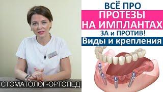 Протезы на имплантах при полной потери зубов. All on 4. Крепления протезов, виды протезов