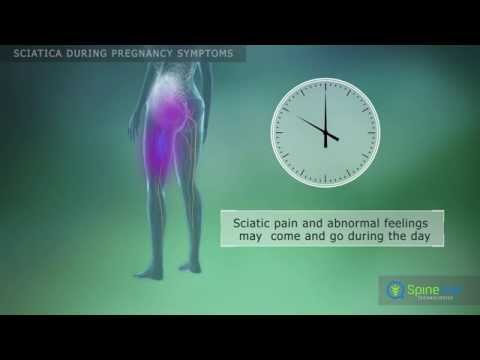 Sciatica during pregnancy Symptoms