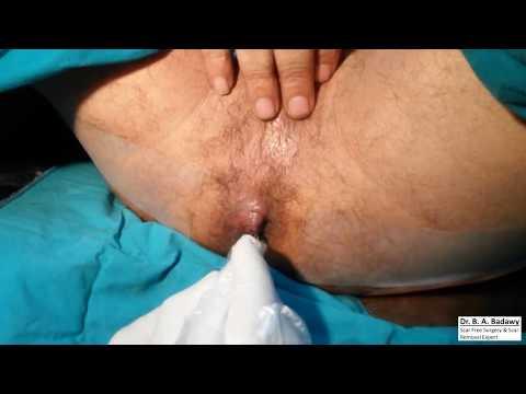 Anal Fissure & Hemorrhoids : The Simplest Cure....الشرخ والبواسير بدون ألم