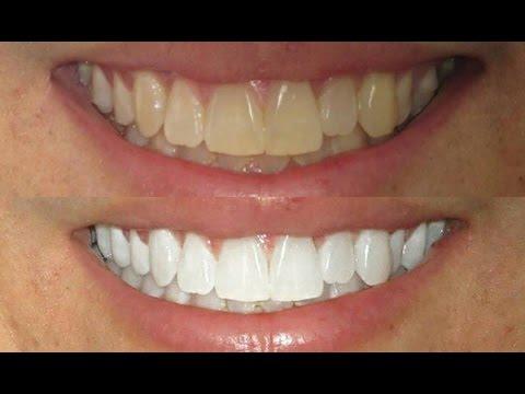 Como Clarear Os Dentes Em Casa Em 2 Minutos Por Junia Gabriela