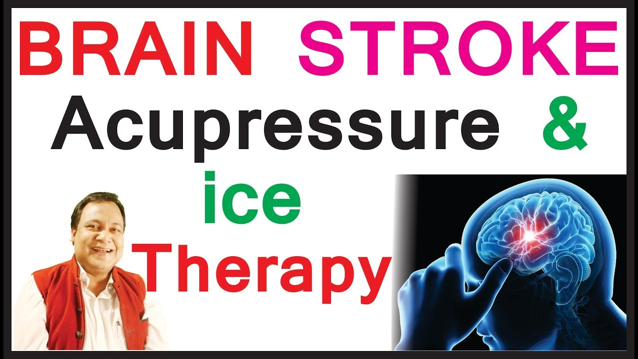 BRAIN STROKE (#PARALYSIS) #ACUPRESSURE & ICING THERAPY 100% कारगर RESULT  PART 3 | Dr  Darbesh
