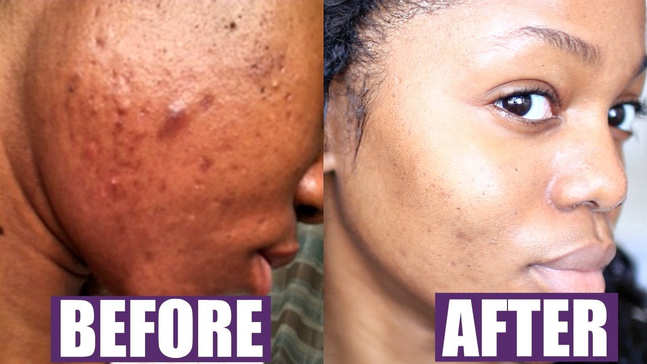 How To Get Rid Of Acne Fast Forever No Diet Change