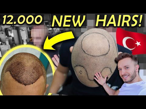 Subscriber Gets 5000 Grafts at HLC┃NW5 Hair Transplant in Turkey!!!