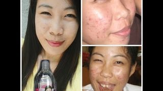 EASY ACNE TREARMENT USING ESKINOL + DALACIN-C