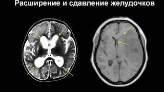 Поражения головного мозга на МРТ