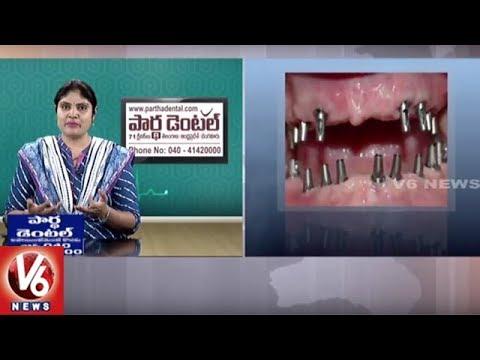 Dental Problems | Reasons And Treatment | Partha Dental Hospital | Good Health | V6 News