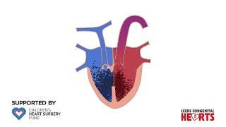Tetralogy of fallot (TOF) - an Osmosis Preview.