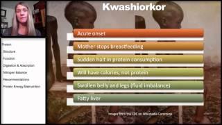 7.6 Protein: Protein Energy Malnutrition