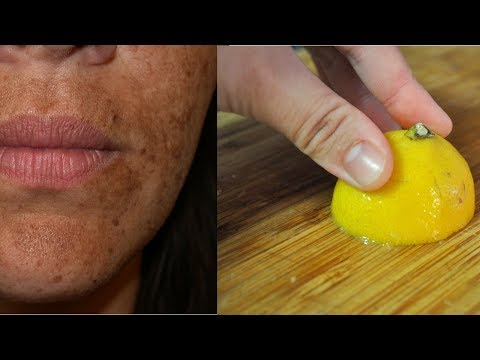 Лимон - МОЩНОЕ средство от пятен на лице