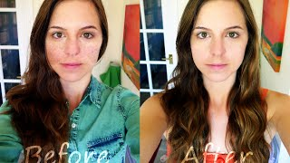 How to Get Rid of Freckles - My Experiment