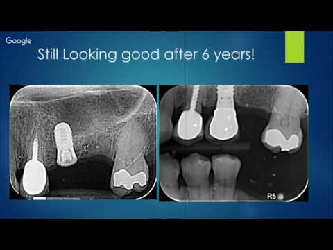 Possibilities of Cerec Guide 2.0 and Blue Sky Bio (1CE, No Charge)