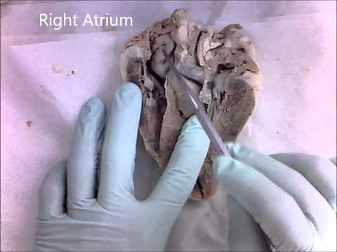 Sheep Heart  Internal Structures