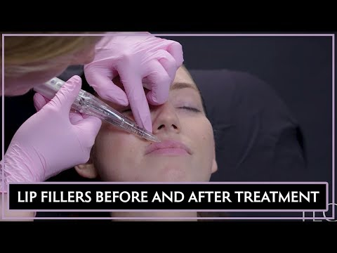 lip-fillers-treatment-experience-with-before-&-afters-(part-2)