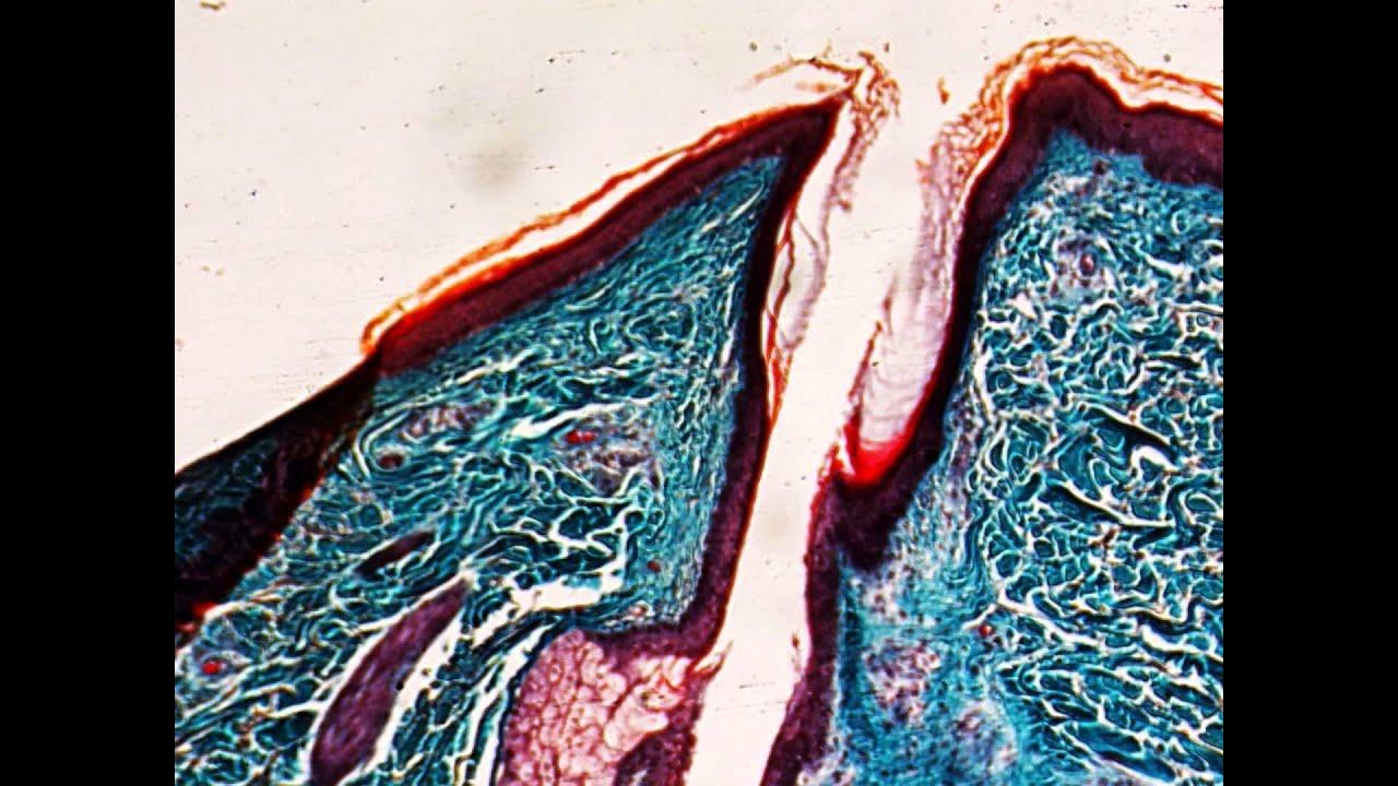 Kopfhaut mit Haaren querschnitt - Mikroskop HD Video Deutsch - YouTube