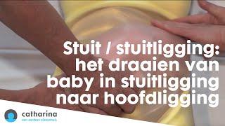 Repeat youtube video Stuit / stuitligging: het draaien van baby in stuitligging naar hoofdligging Catharina Ziekenhuis