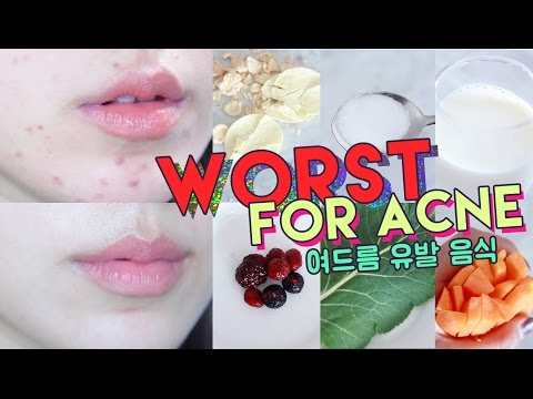 WORST FOODS FOR ACNE! • Get Rid of Hormonal Acne Naturally 🌴 Liah Yoo