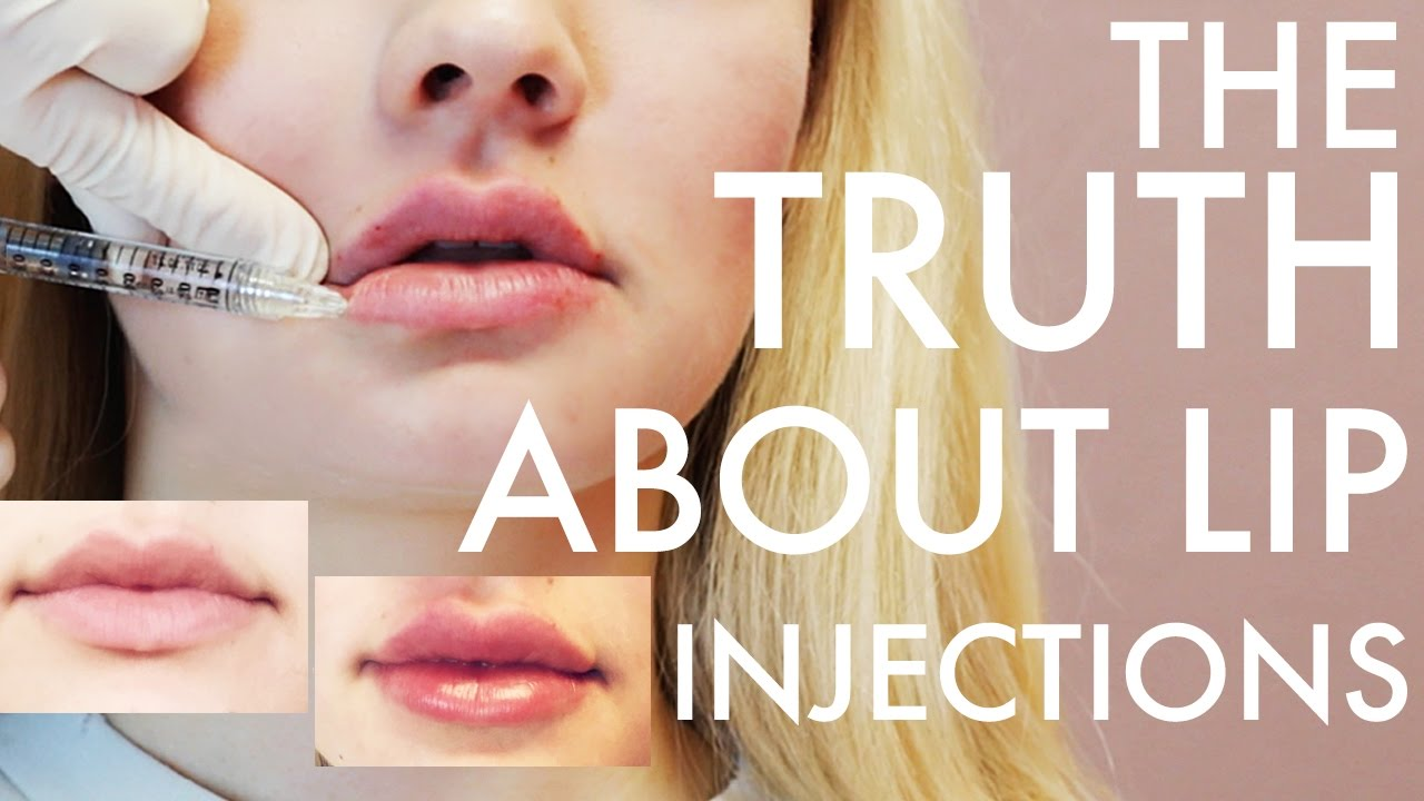 Getting Lip Injections from a Doctor | Filler 101 and Common Myths