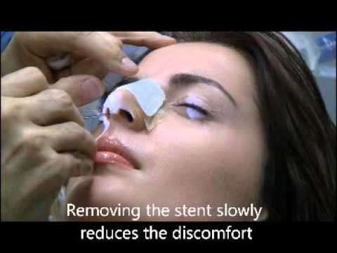 Removing a Nasal Stent on the 7th Day After Rhinoplasty