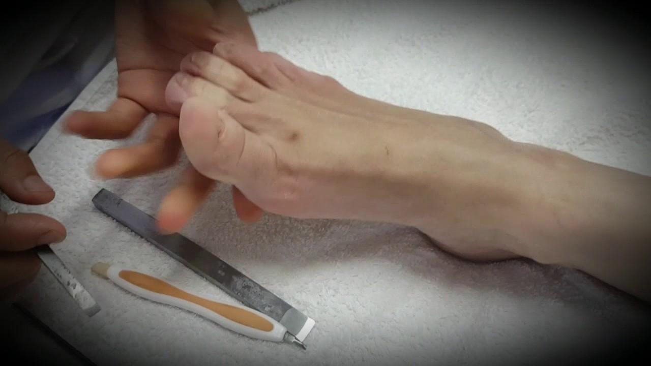 Como quitar las durezas delos pies en casa