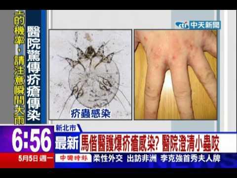 中天新聞》馬偕26醫護疑染疥瘡 檢驗沒蟲卵已排