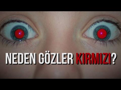 90 Saniyede Bilim  Neden Fotoğraflarda Gözler Kırmızı Çıkar?