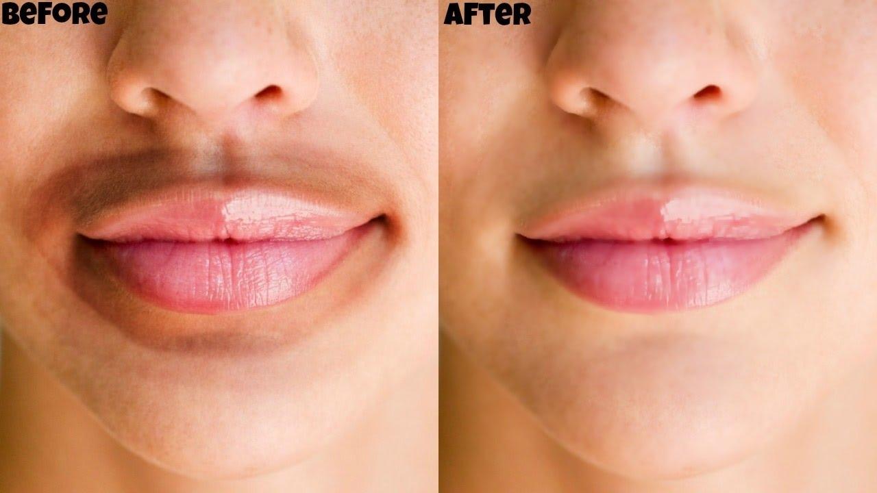 Reason For Darkness Around Lips | Lipstutorial.org