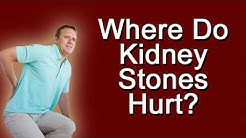 Where Do Kidney Stones Hurt?