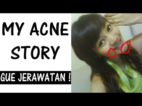 My Acne Story / Gue Jerawatan!! #RachelGoddard