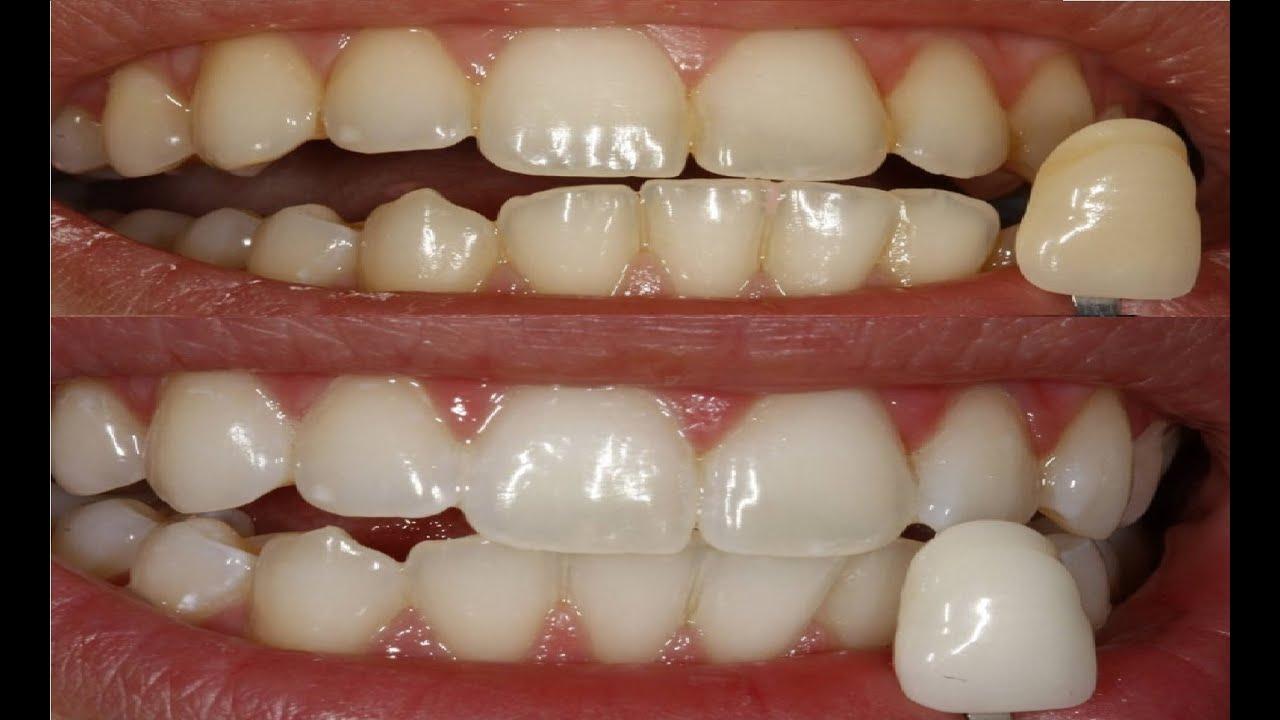 Como Deixar Dentes Brancos Em Casa Veja Esta Dica Youtube